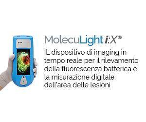 scopri MolecuLight